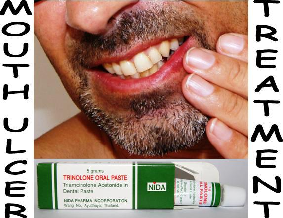 cold sore herpes simplex virus treatment