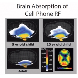 brain_absorption_of_cell_rf.jpg