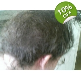 Removal Video Kit- Matted Hair Clumps/..