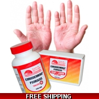 Coriodermina: Treating Psoriasis ..