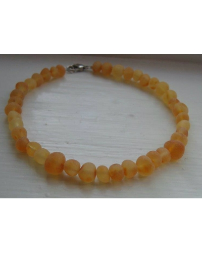 Raw Amber ANKLET Custom Sized Child, Teen, Adult