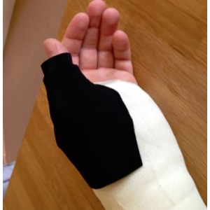 Scaphoid Thumb Extension