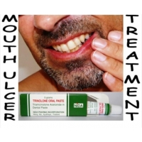 Get Rid of Mouth Ulcers & Canker Sores Trinolone Oral Paste