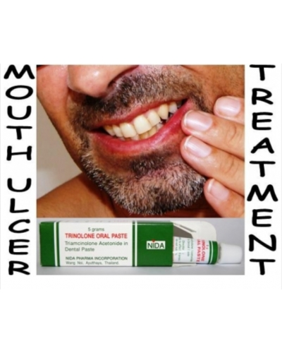 Relief For Mouth Ulcers & Canker Sores Trinolone Oral Paste