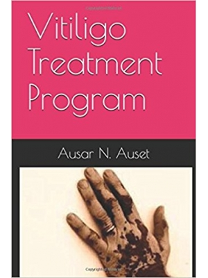 Vitiligo Treatment Prog..